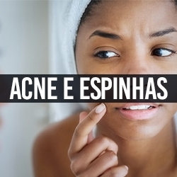 Acne e Espinhas